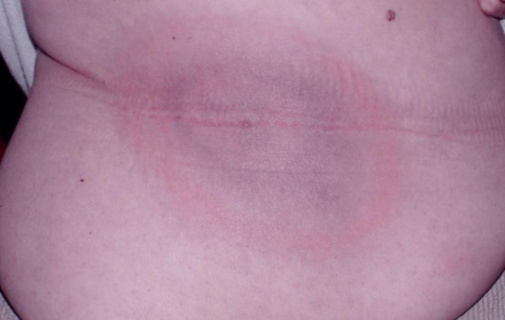 May Have Lyme Disease-lyme-disease.png